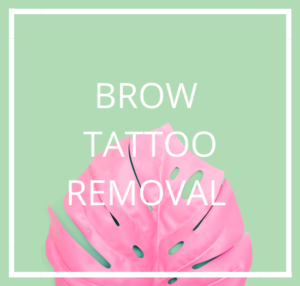 Tattoo-Lightening-Removal